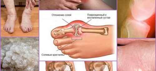 Альфа-артроферол снимает воспаление суставов